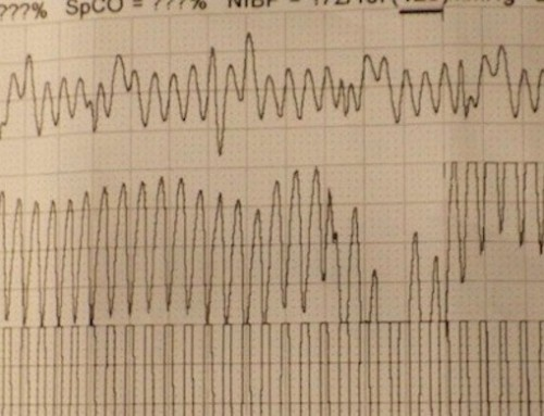 Tachycardic ECG